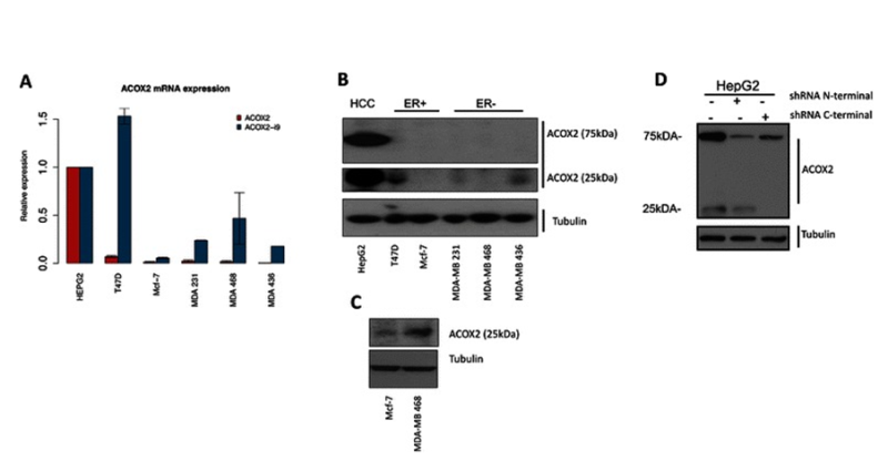 Figure 4. Expression of ACOX2 in breast cancer cell lines. ACOX2 and ACOX2-i9 mRNA levels were assessed by qRT-PCR in HepG2 cells and breast cancer cell lines (a), quantification is shown relative to HepG2 expression. Protein extracts from HepG2 and breast cancer cell lines were probed with a C-terminal antibody against ACOX2 (b). Highly sensitive chemiluminescent substrate (c) was included for illustration purposes to show even low levels of protein expression. HepG2 cells were transfected with shRNA targeting the N-terminal and C-terminal regions of ACOX2 (d).