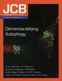 <i>Cover caption from JCB:</i> <br>Protein deposits (red) are not cleaned up in autophagy-deficient cells. This might lead to dementia, say Filimenko et al.(click to enlarge)