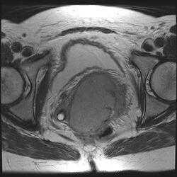 MR picture of a patient with cervix cancer